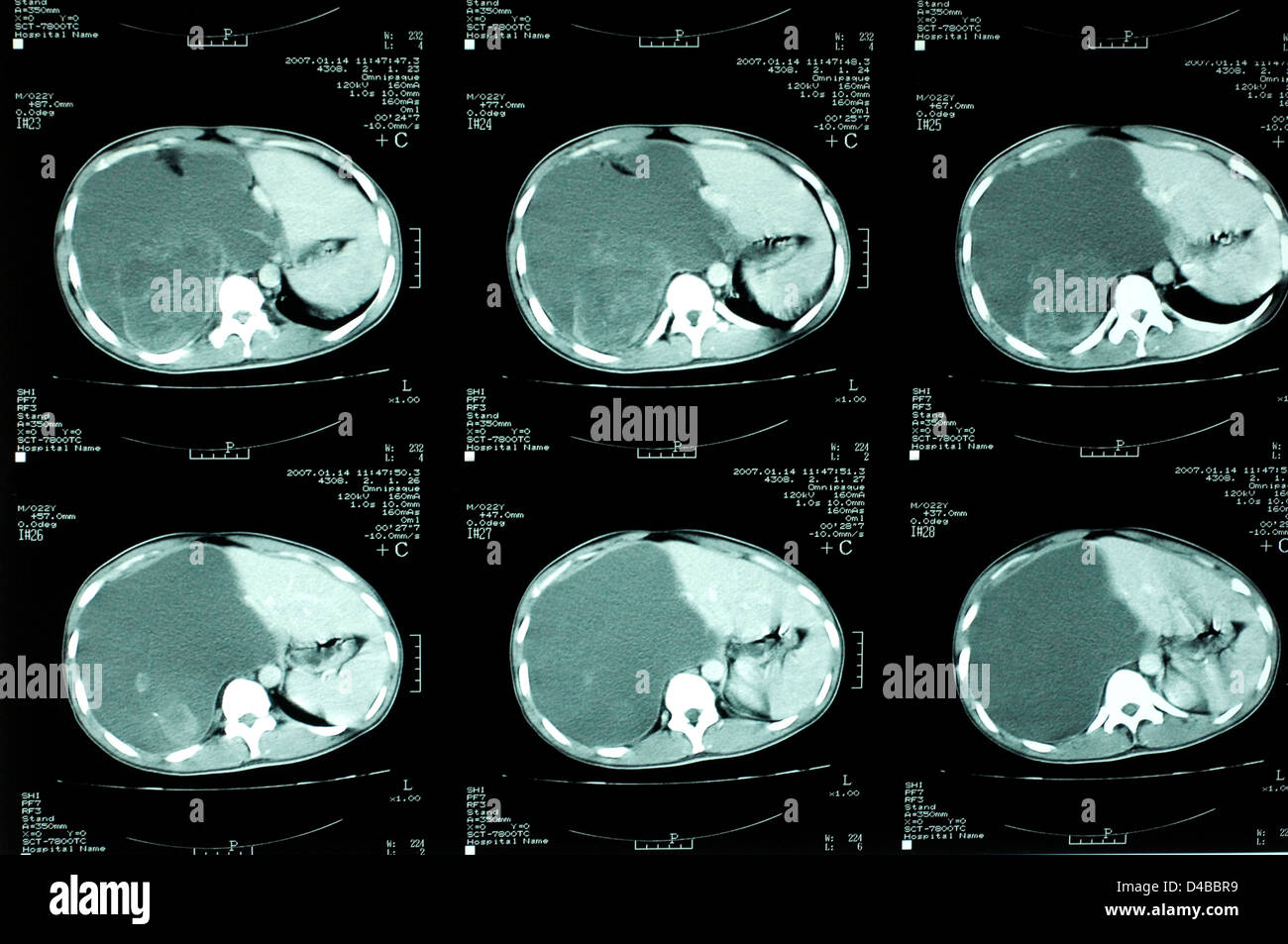 Radiology. CT scan showing a blood pooling on the right side of a patient's abdomen following recent trauma. - Stock Image