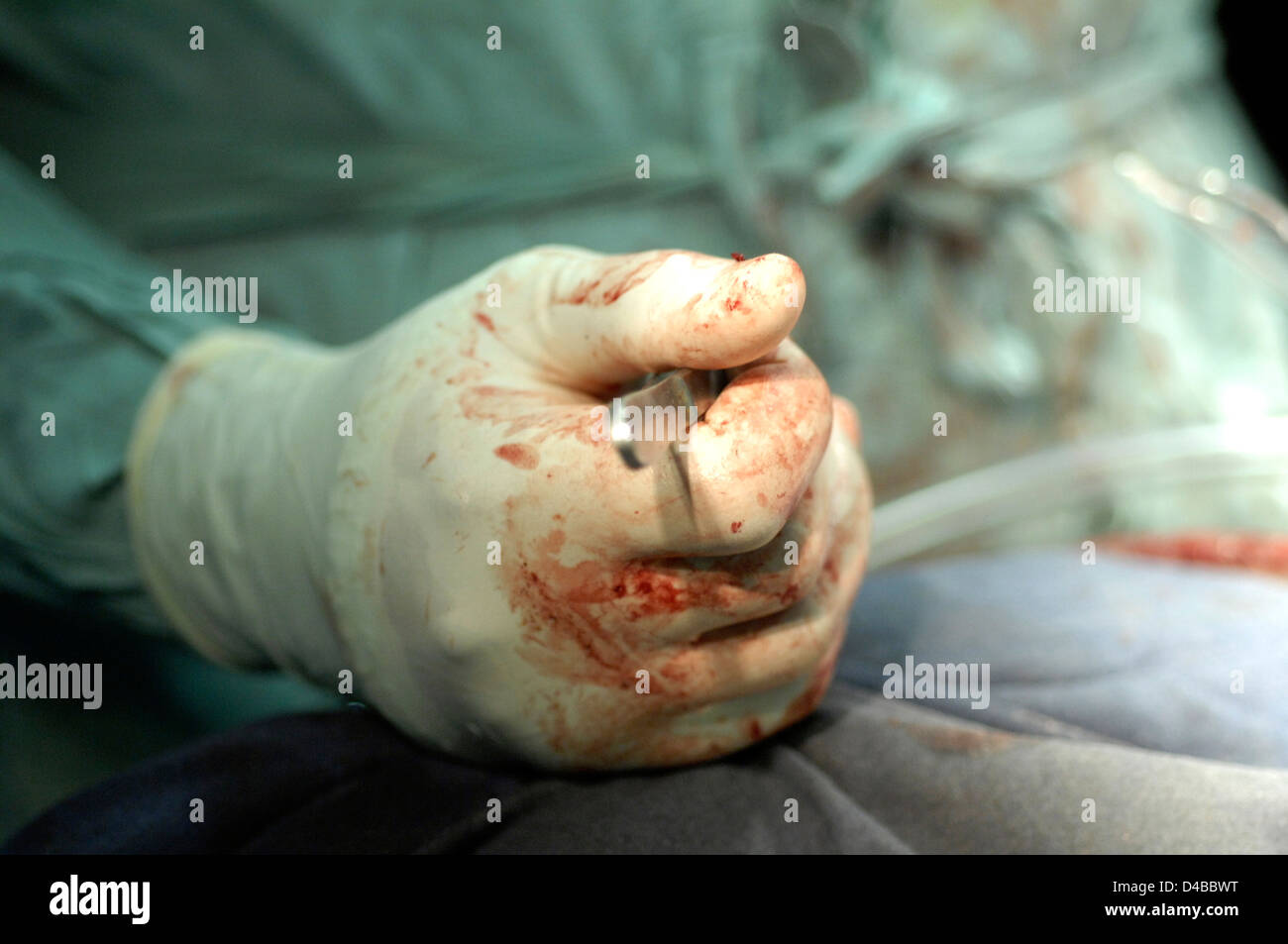 Gloved hand holding a scalpel. Sudan, Africa. - Stock Image