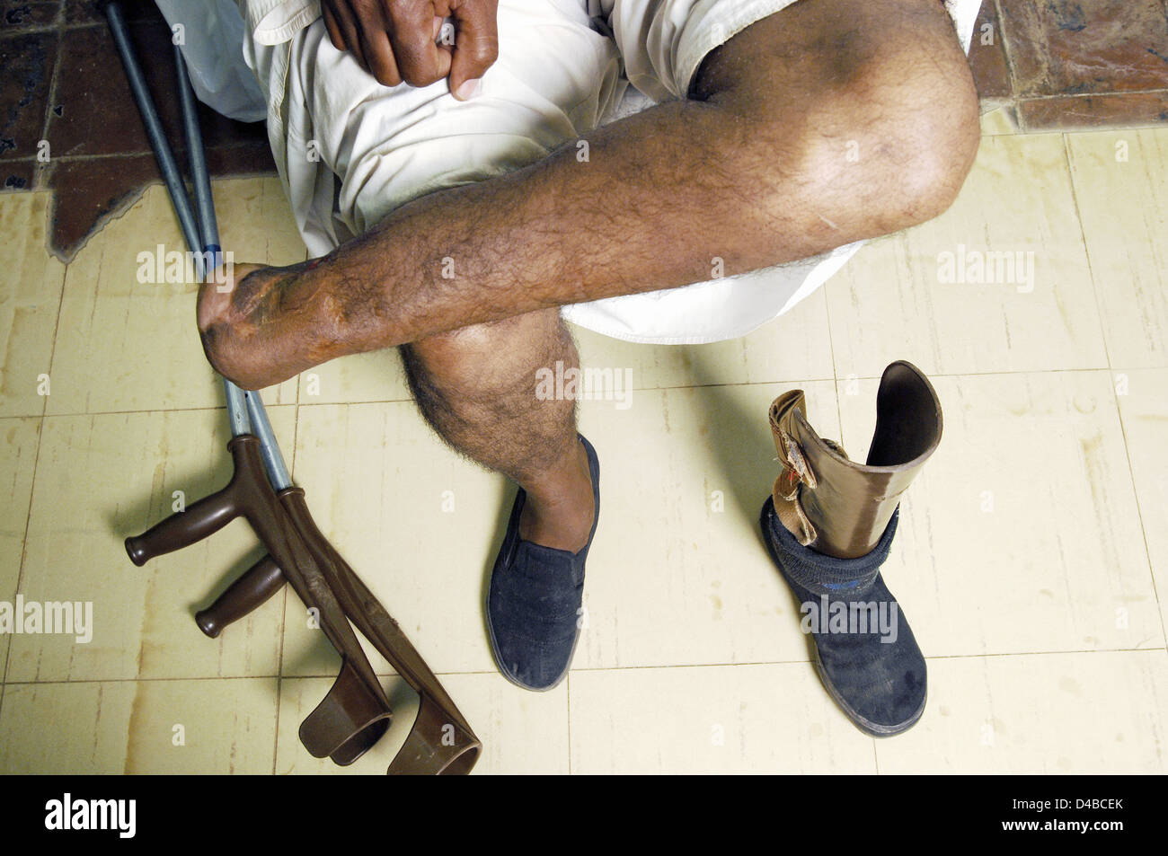 Young man with left foot which was amputated due to Mycetoma - Bacteria and fungal disease associated with farming - Stock Image