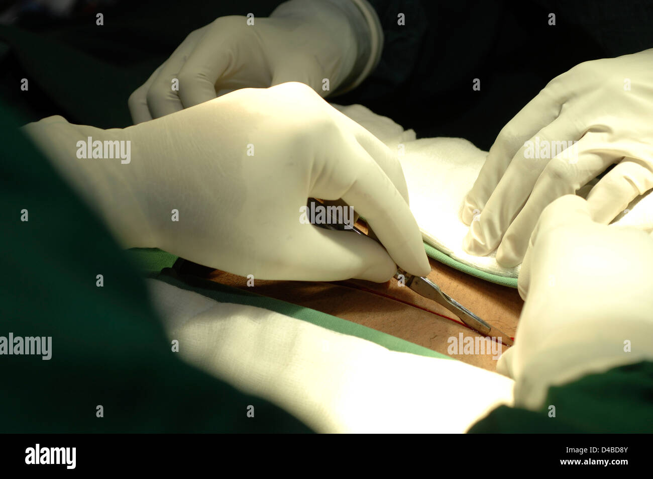 Surgeon making initial incision - Stock Image