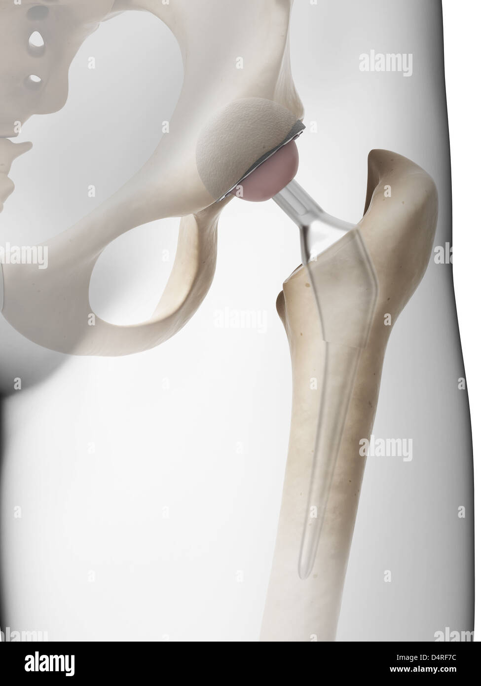 Hip replacement - Stock Image