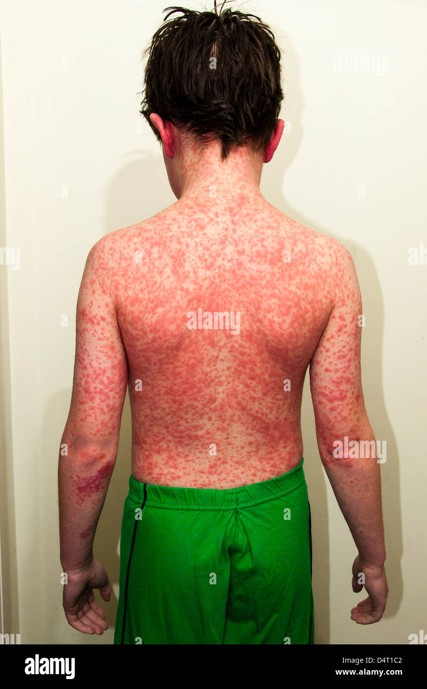 Young Boy With a Rash Caused by An Allergic Reaction - Stock Image