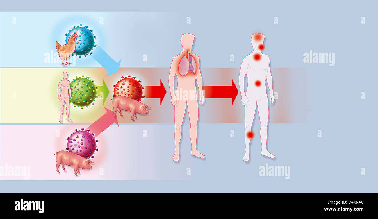 INFLUENZA A H1N1 INFECTION - Stock Image