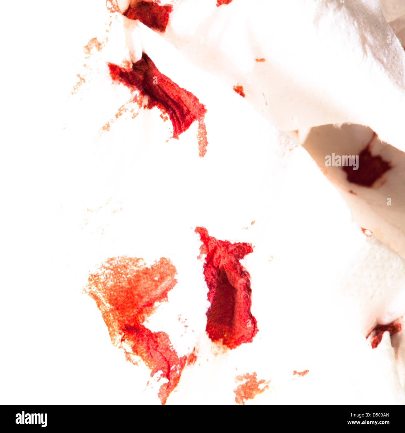 A white napkin has red dots from nose bleeding. Stock Photo