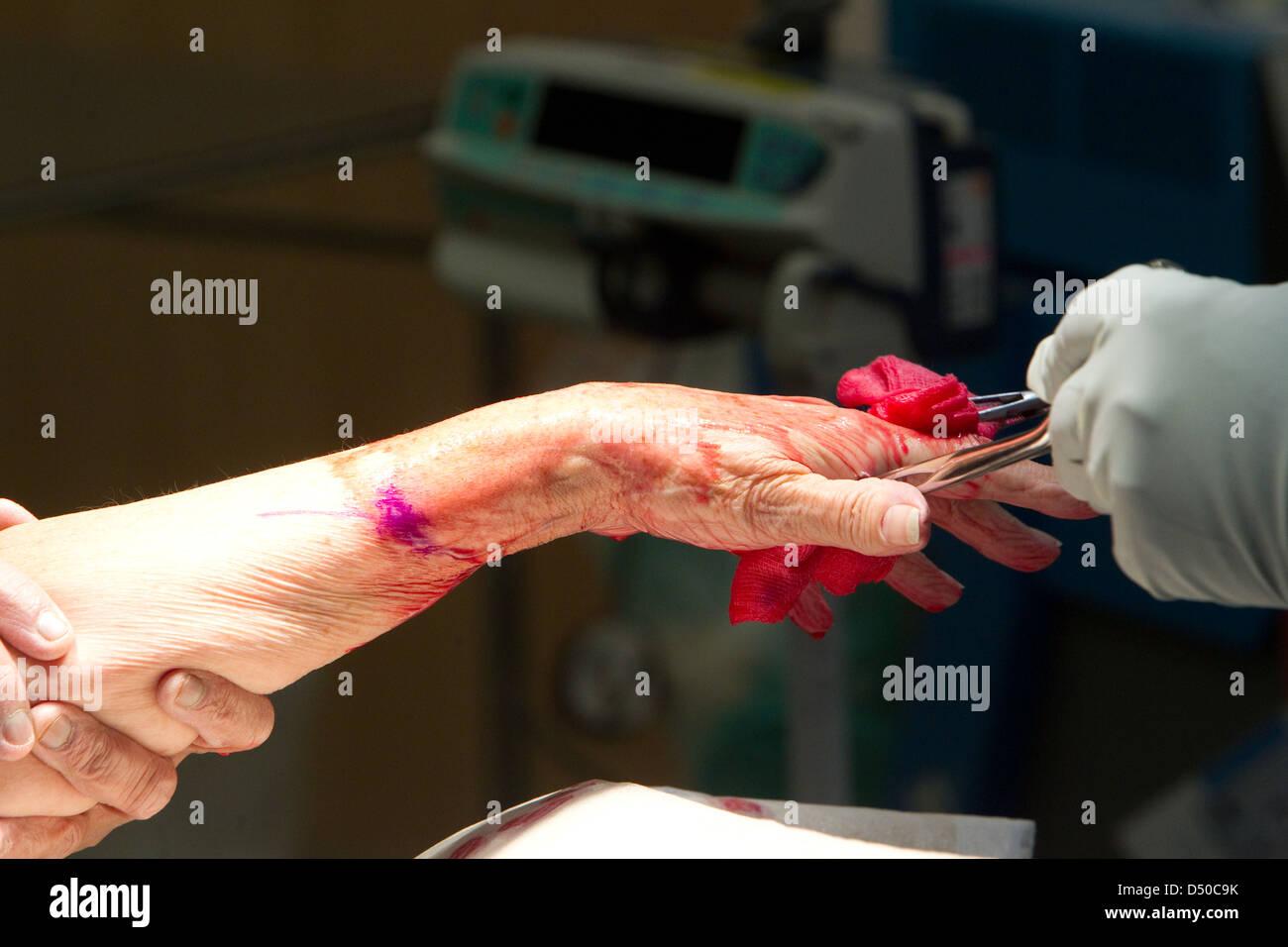 Hand operation - Stock Image