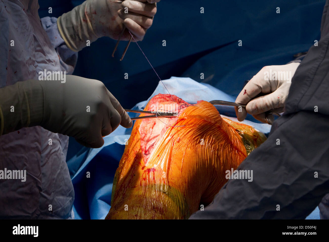 Hospital operation surgery NHS Admission Doctor Surgeon admission - Stock Image