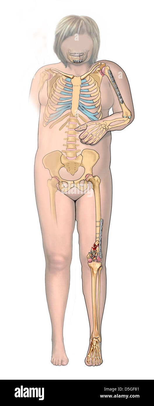 The Body Stock Photos & The Body Stock Images - Alamy