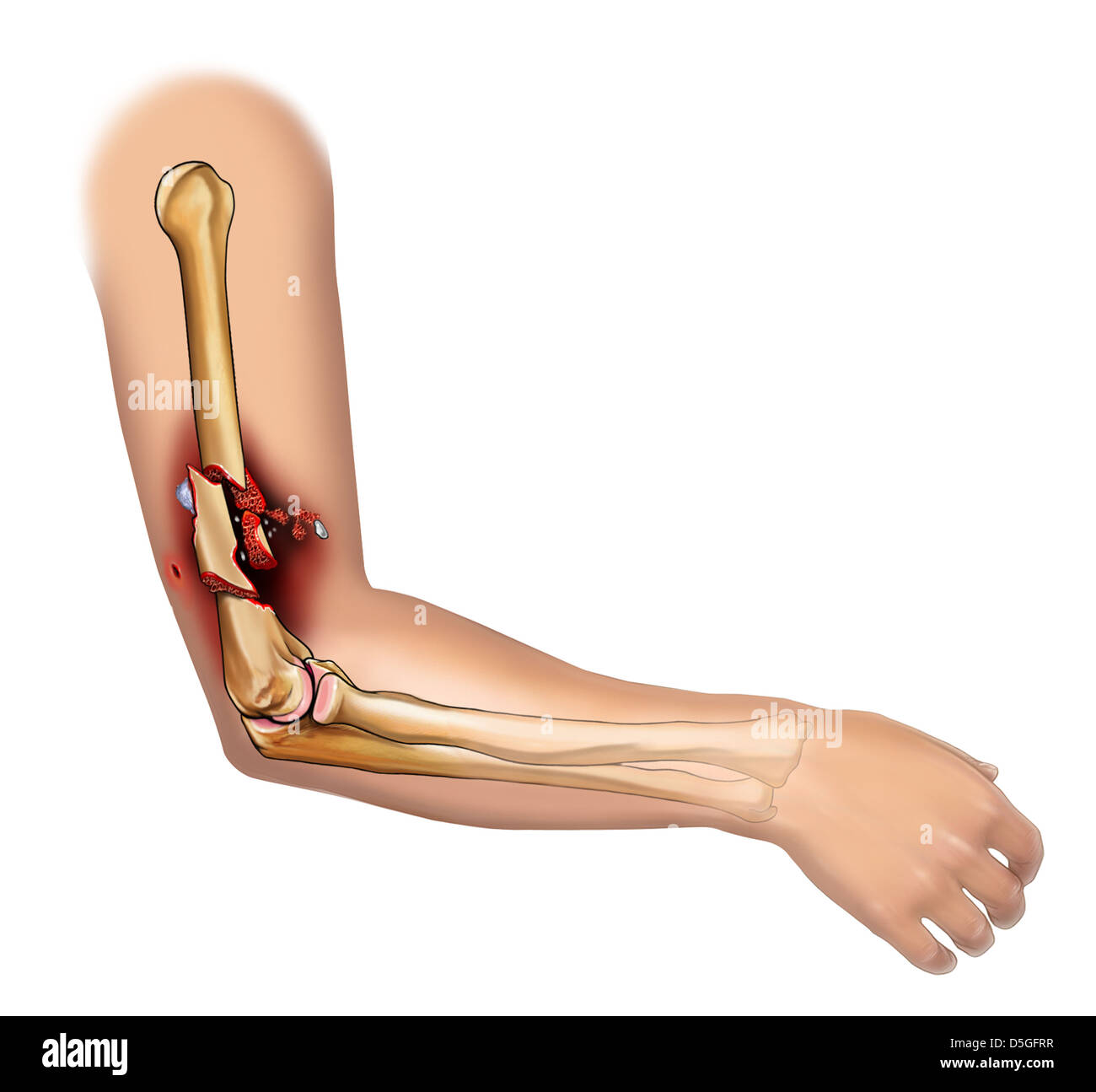 Comminuted Fracture Of The Humerus Stock Photo 55068043 Alamy