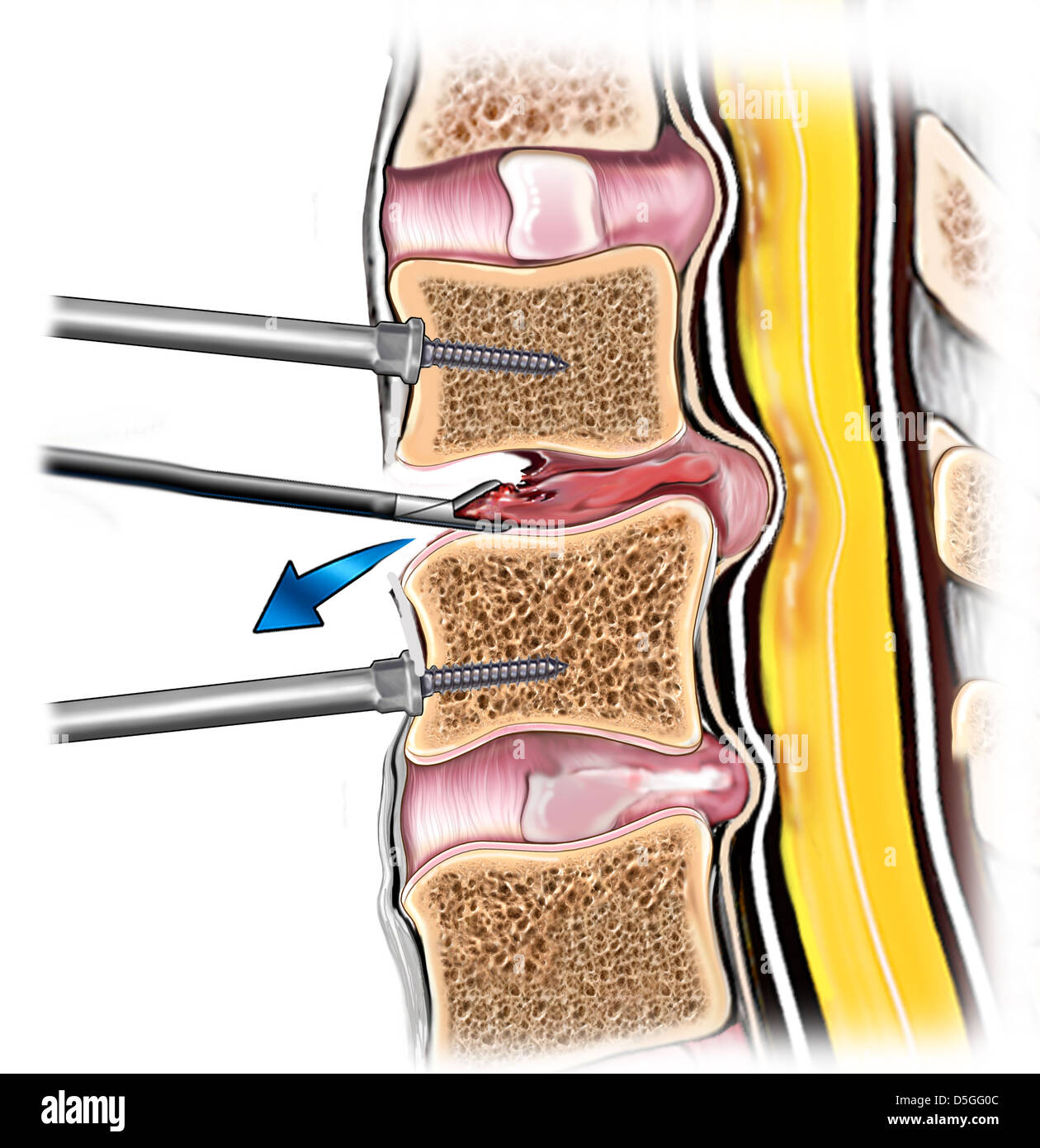 Spine Bone Fusion With Fibular Allograft Stock Photo 55068172 Alamy