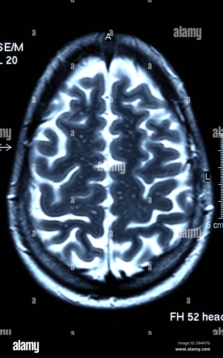 Brain scan, MRI scan - Stock Image