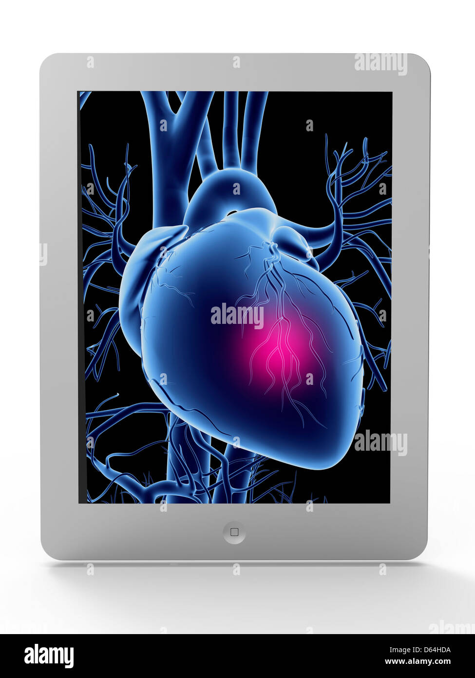 Tablet computer, heart attack artwork - Stock Image
