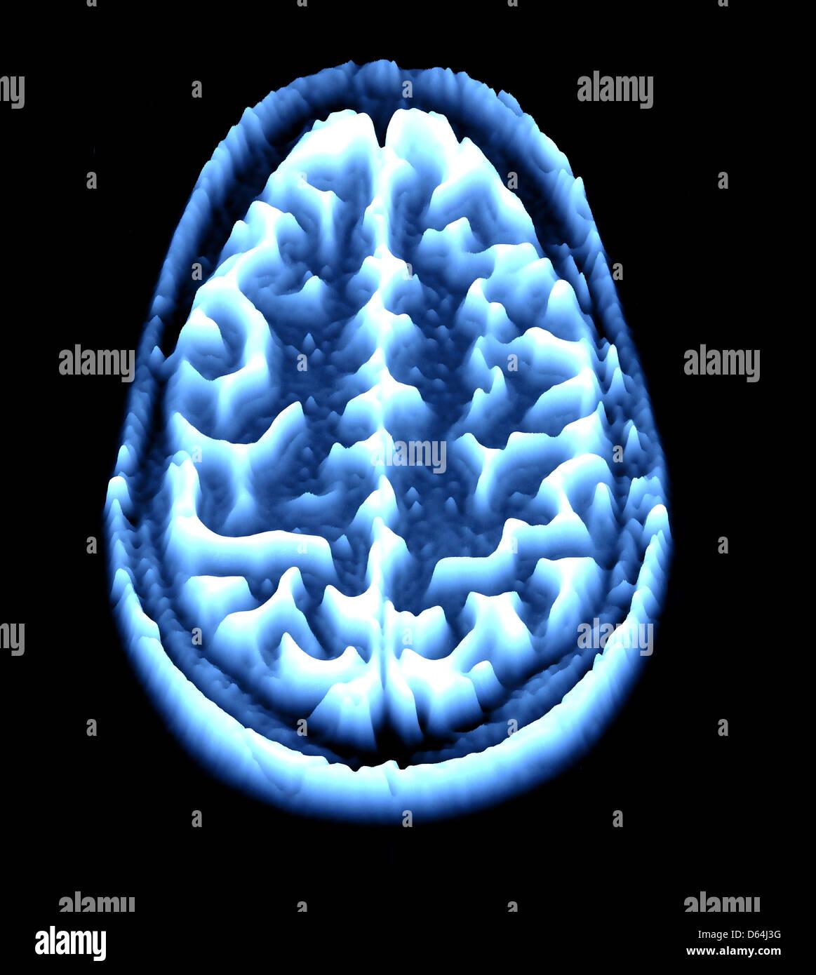 Brain scan, MRI scan, heightmap - Stock Image