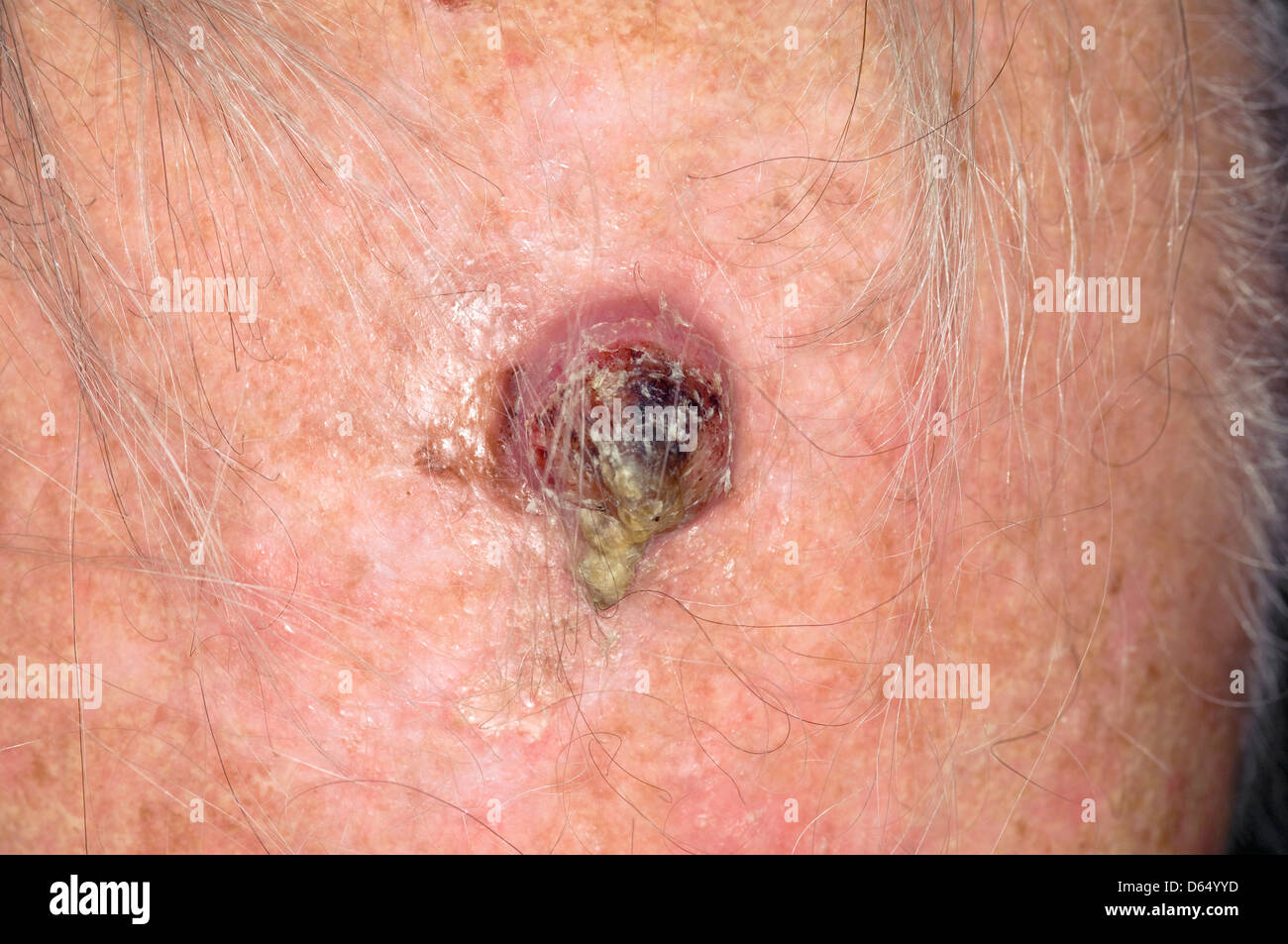 squamous cell carcinoma scalp stock photos amp squamous cell