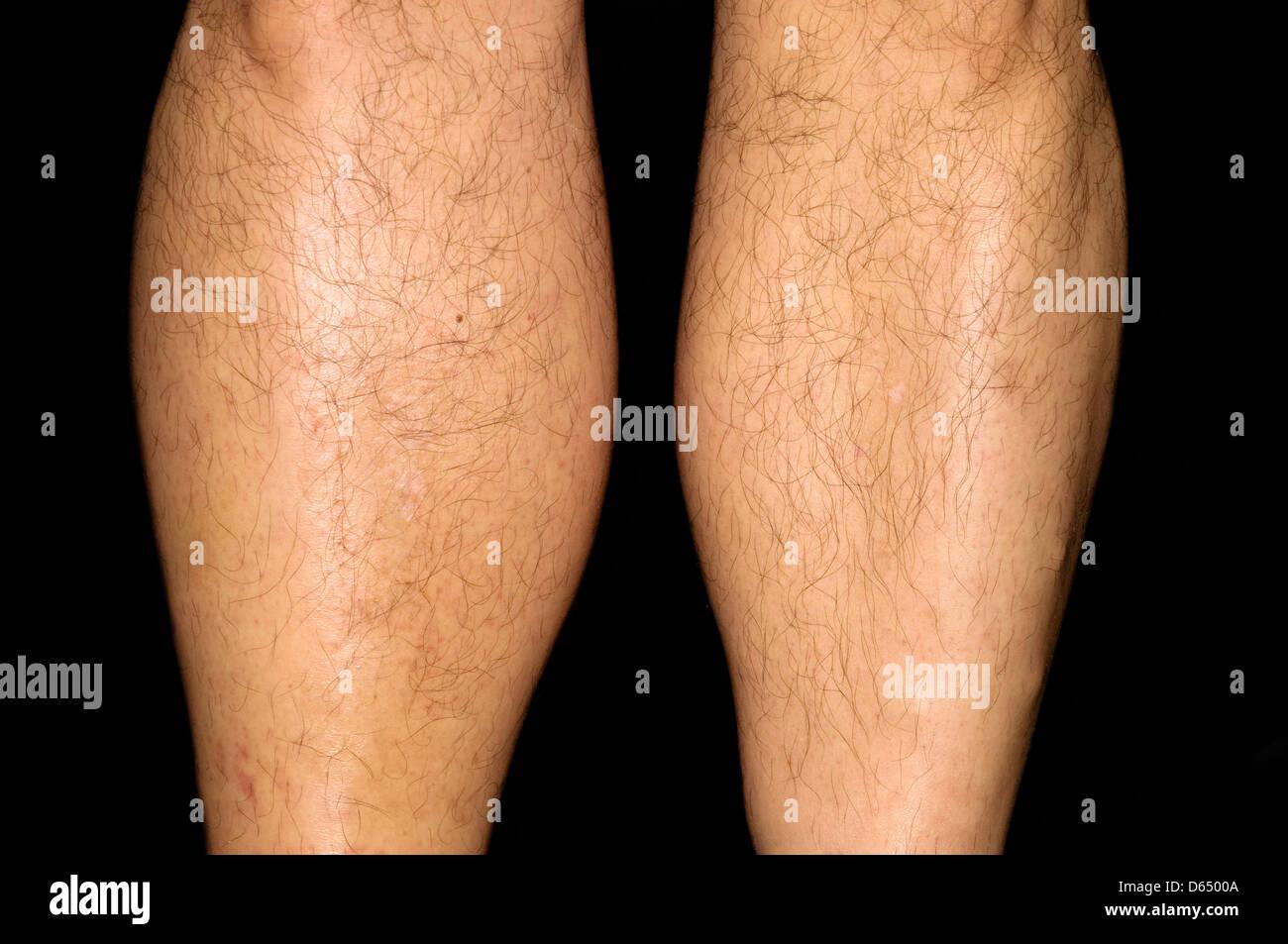 Deep vein thrombosis - Stock Image