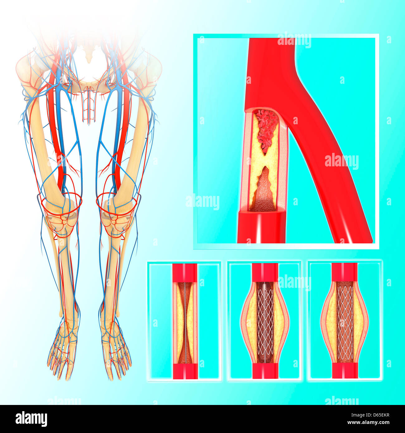 Leg Arteries Stock Photos & Leg Arteries Stock Images - Alamy