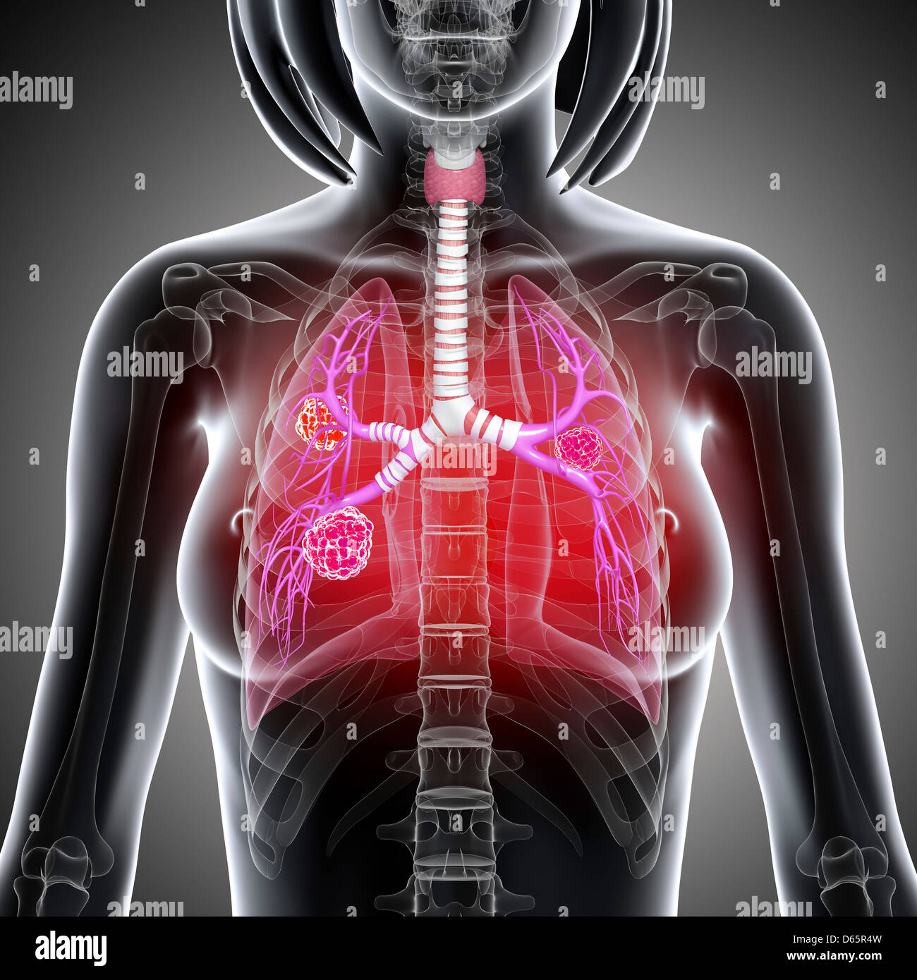 Female lung cancer, artwork Stock Photo: 55446969 - Alamy