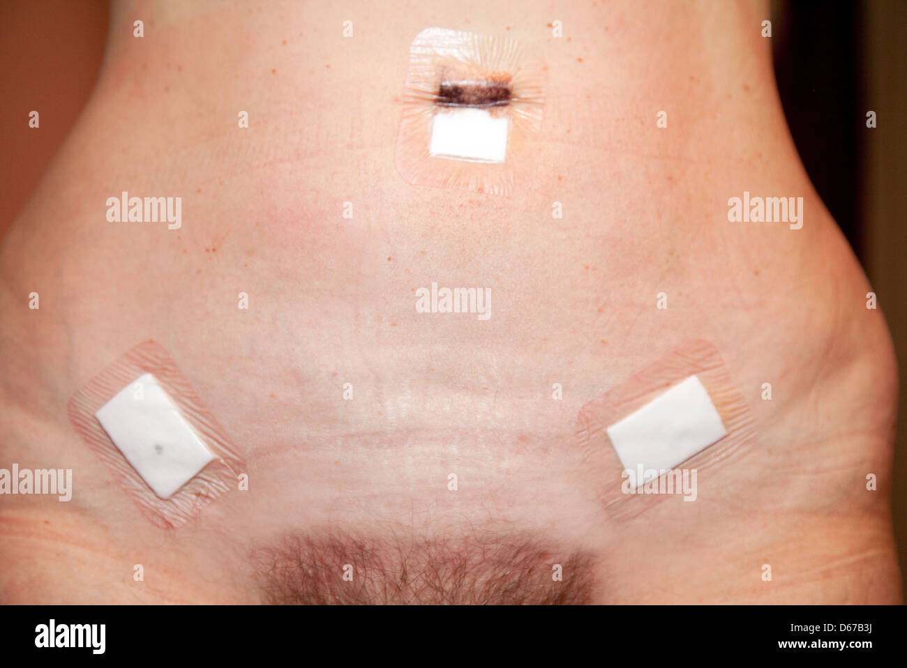 Stomach of a woman showing the operation scars from a laparoscopy ( keyhole surgery ) 1 day old, UK Stock Photo