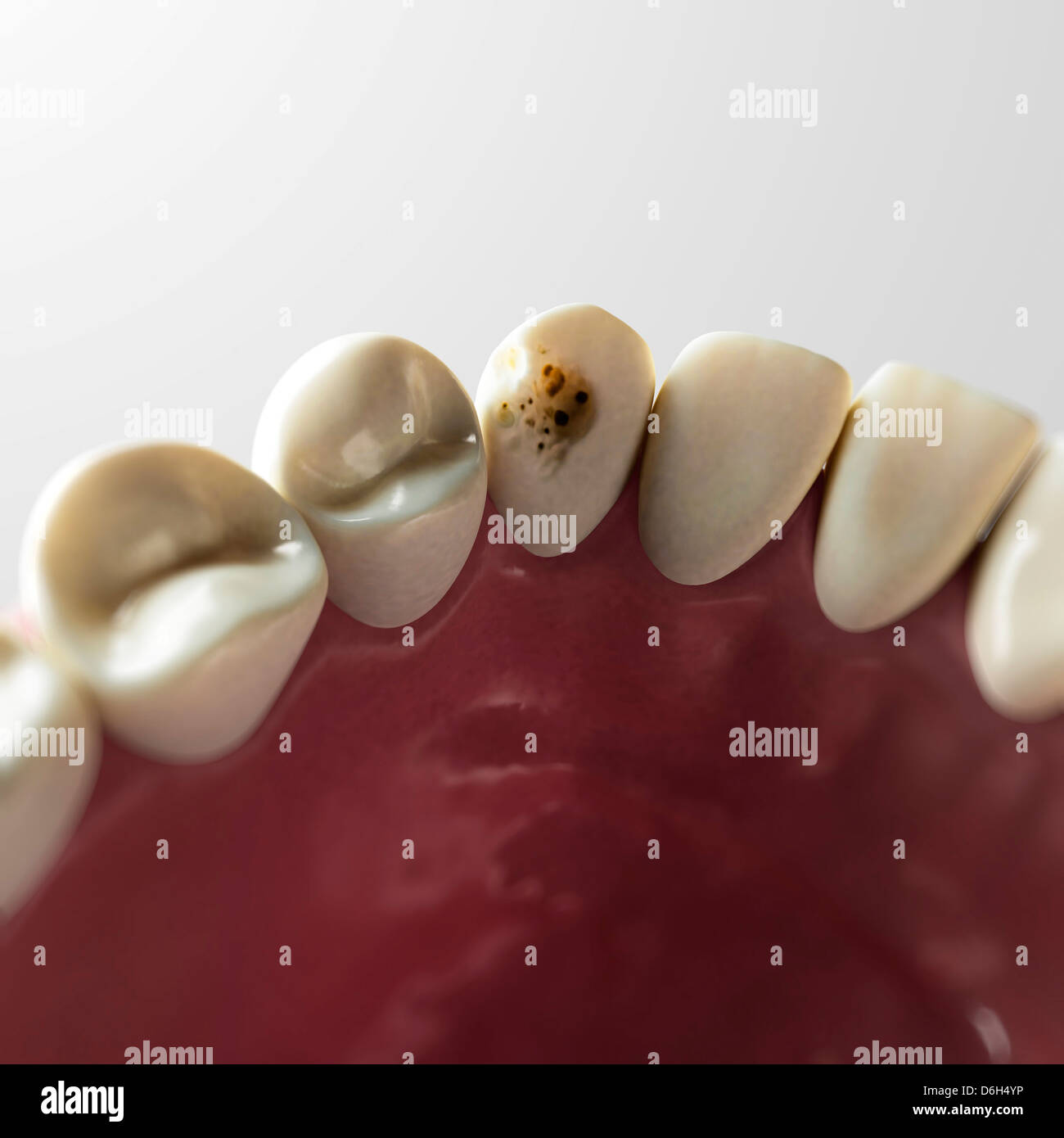 Tooth decay, artwork - Stock Image