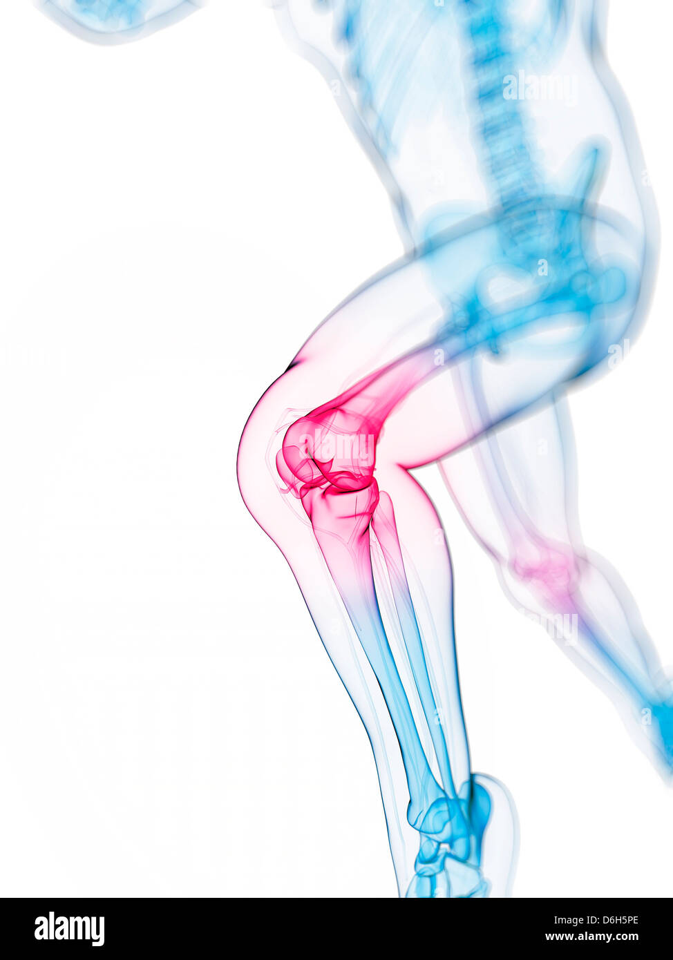 Knee pain, conceptual artwork Stock Photo