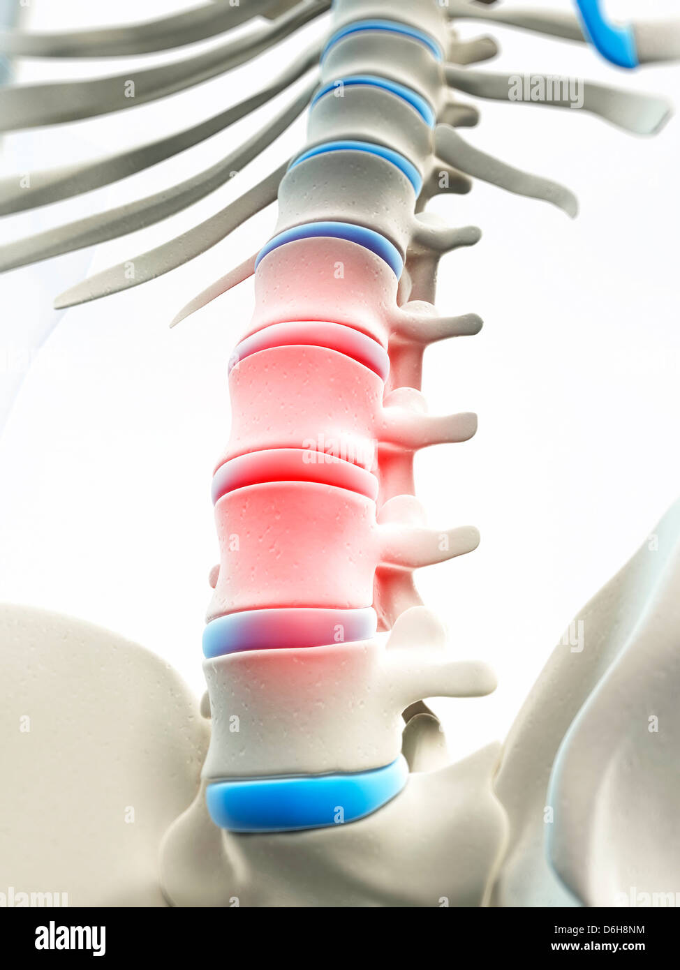 Back pain, conceptual artwork Stock Photo