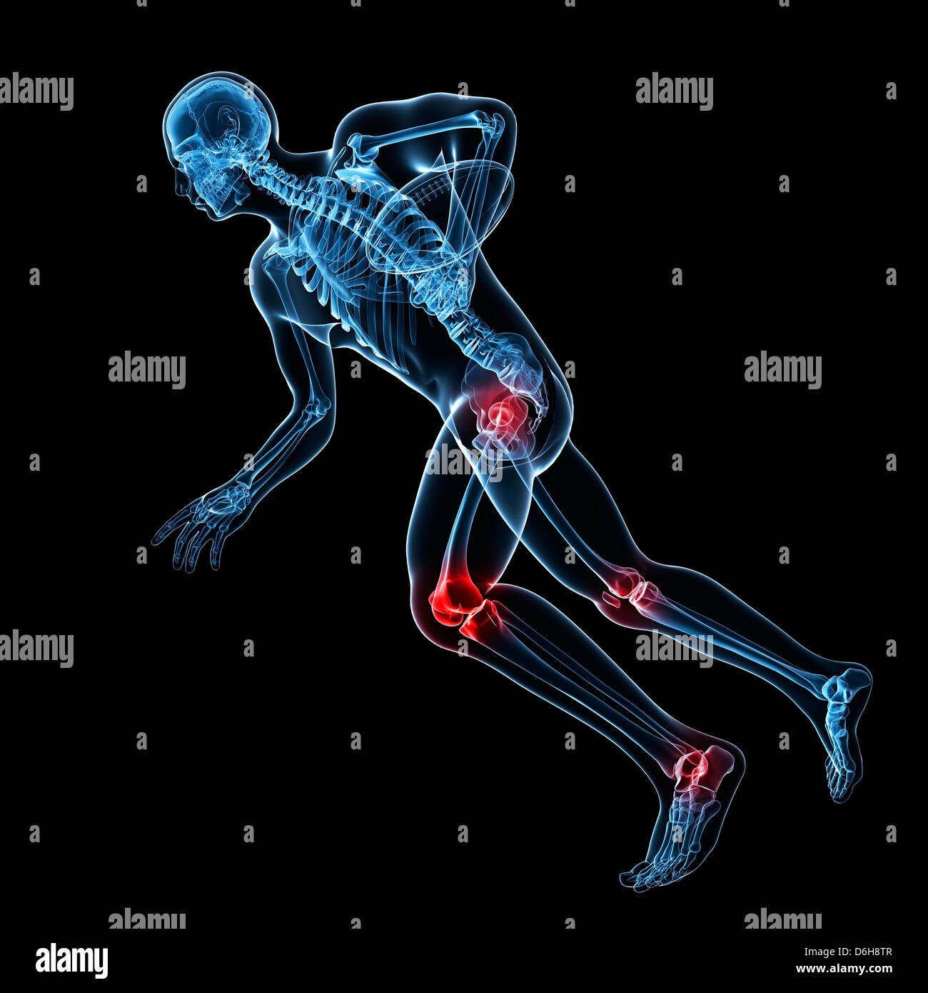 Sports injuries, conceptual artwork - Stock Image