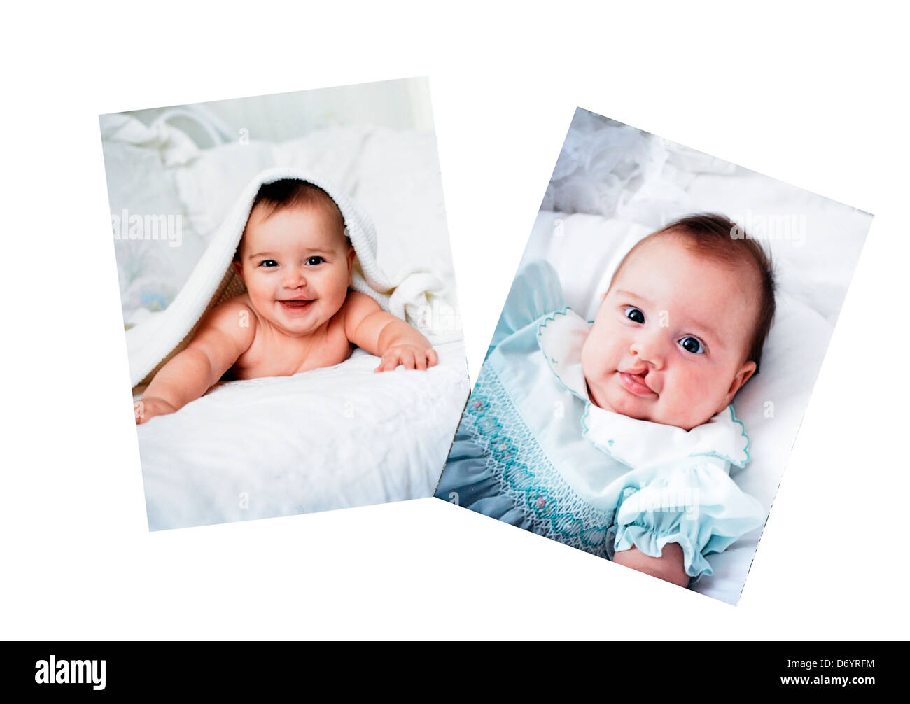 Pictures in a photo album of a baby who had surgery for a cleft lip. - Stock Image