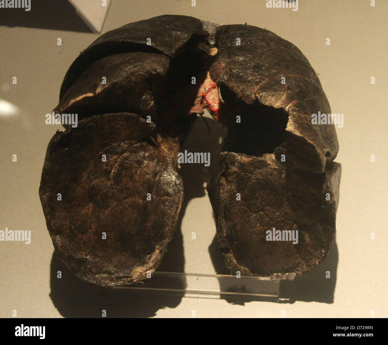 Discovery 2018 Black >> Smokers Lungs Stock Photos & Smokers Lungs Stock Images - Alamy