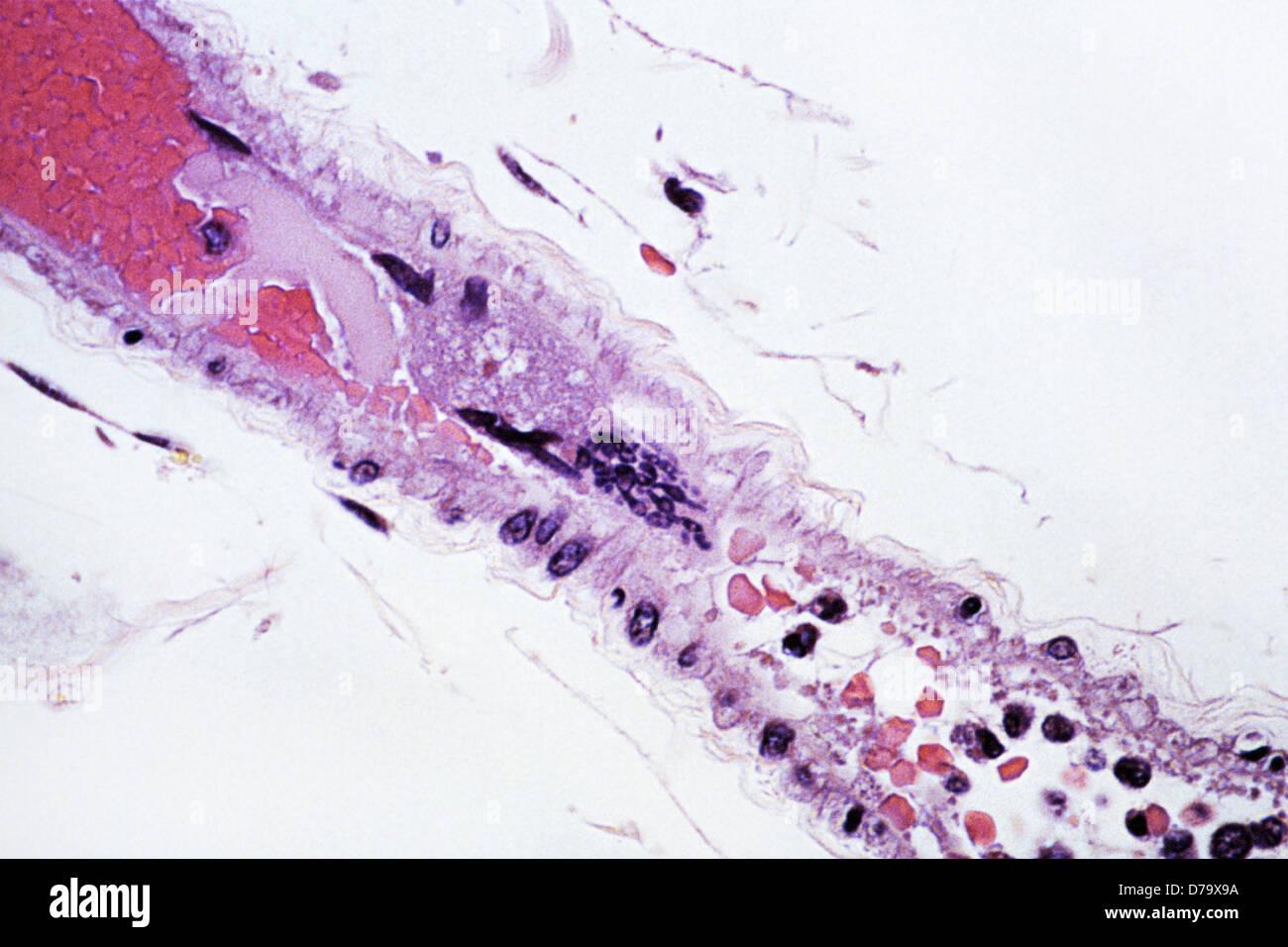Nipah Virus Infection - Stock Image