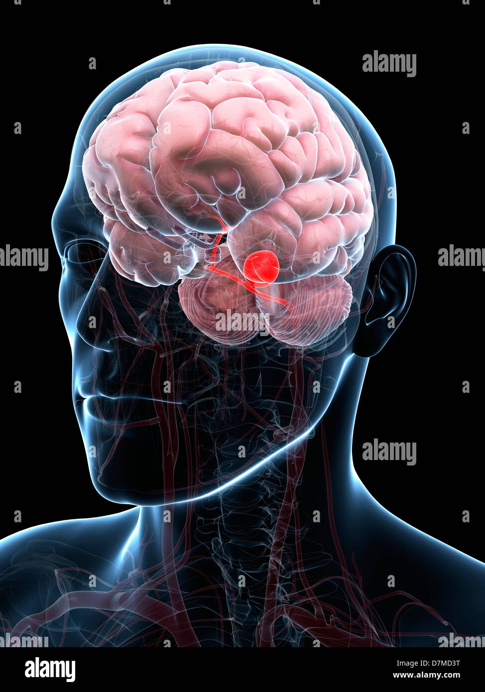 Aneurysm Of The Brain Stock Photos & Aneurysm Of The Brain Stock ...