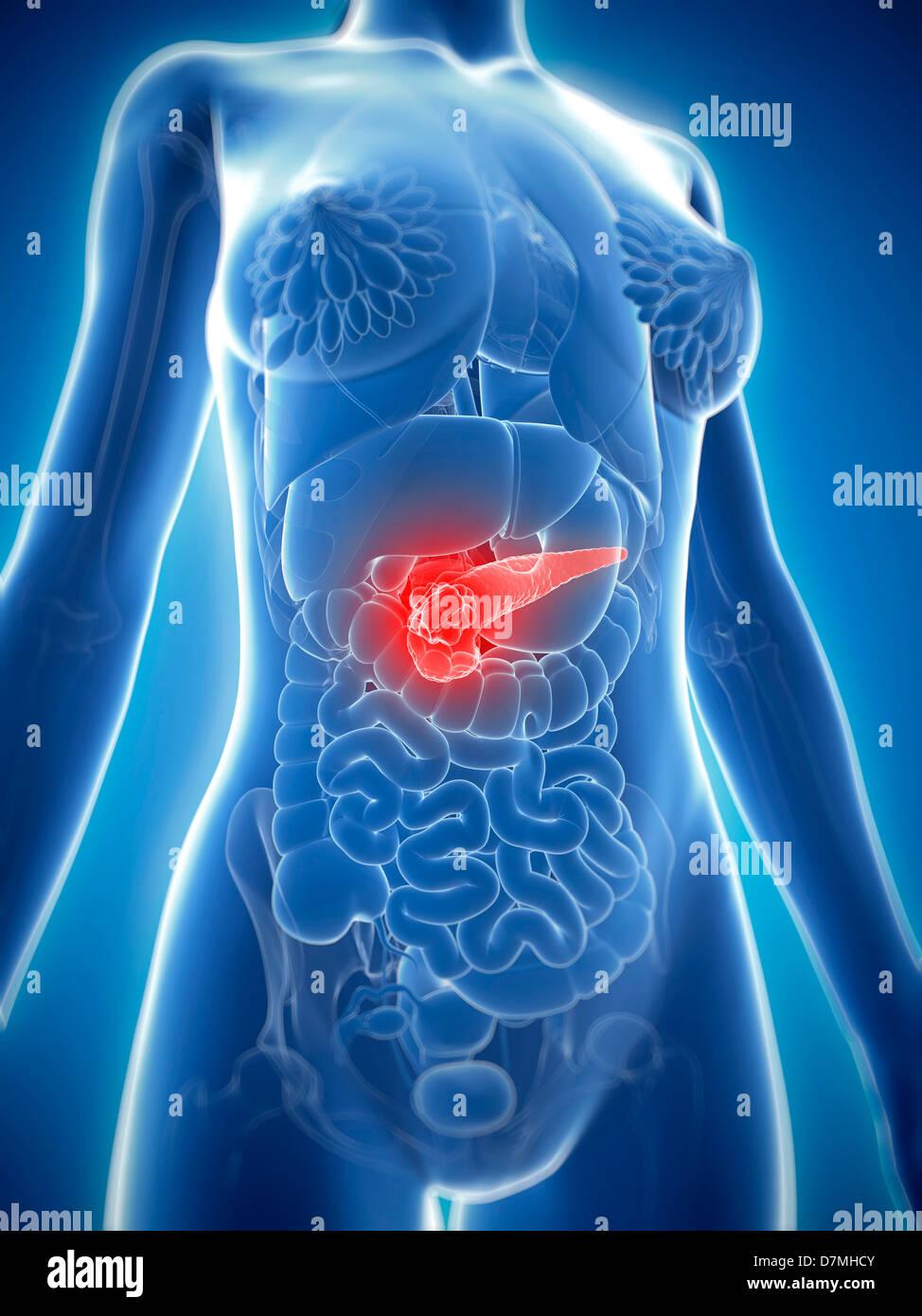 Pancreas Cancer Stock Photos & Pancreas Cancer Stock Images - Alamy