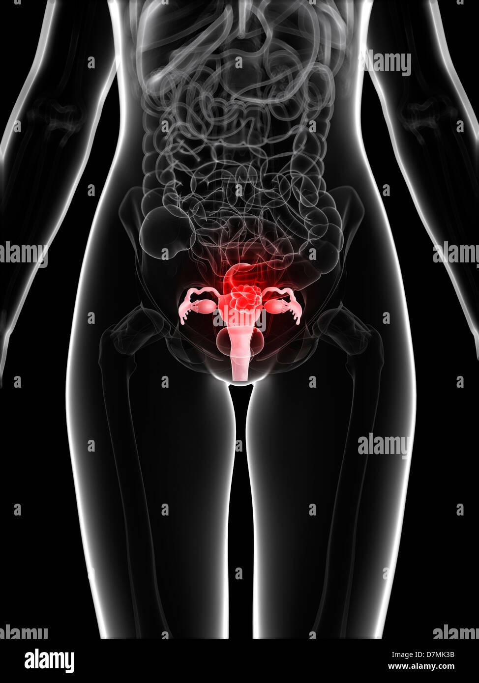 Uterine cancer, artwork - Stock Image