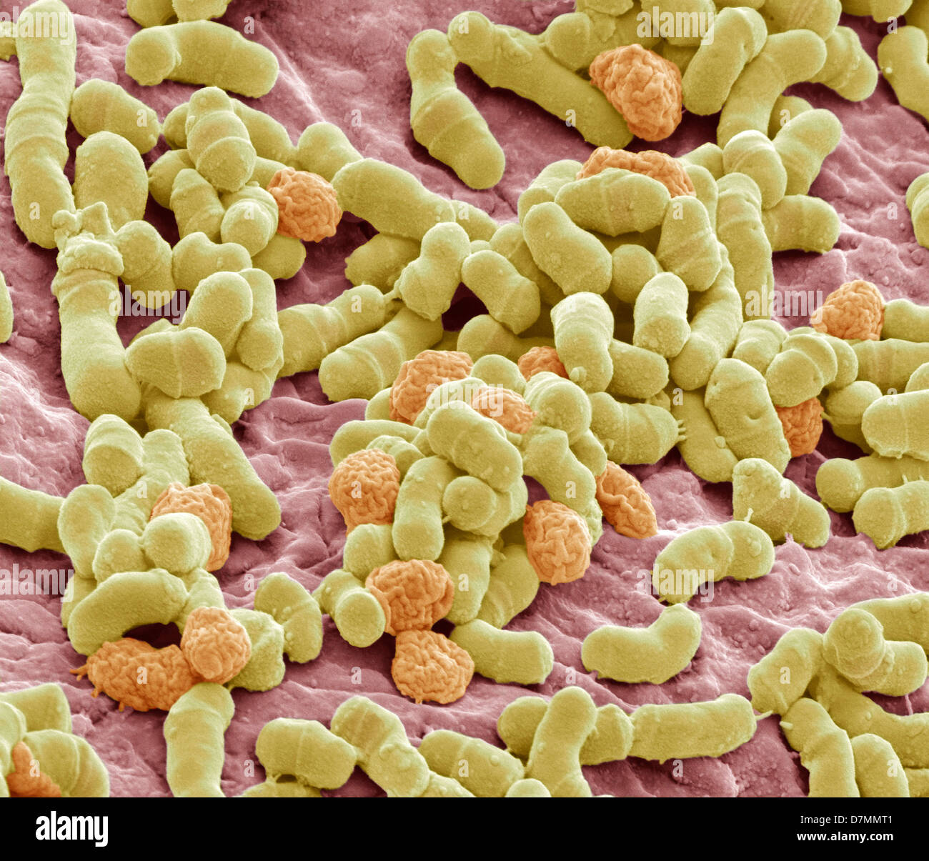 Athlete's foot fungus, SEM - Stock Image