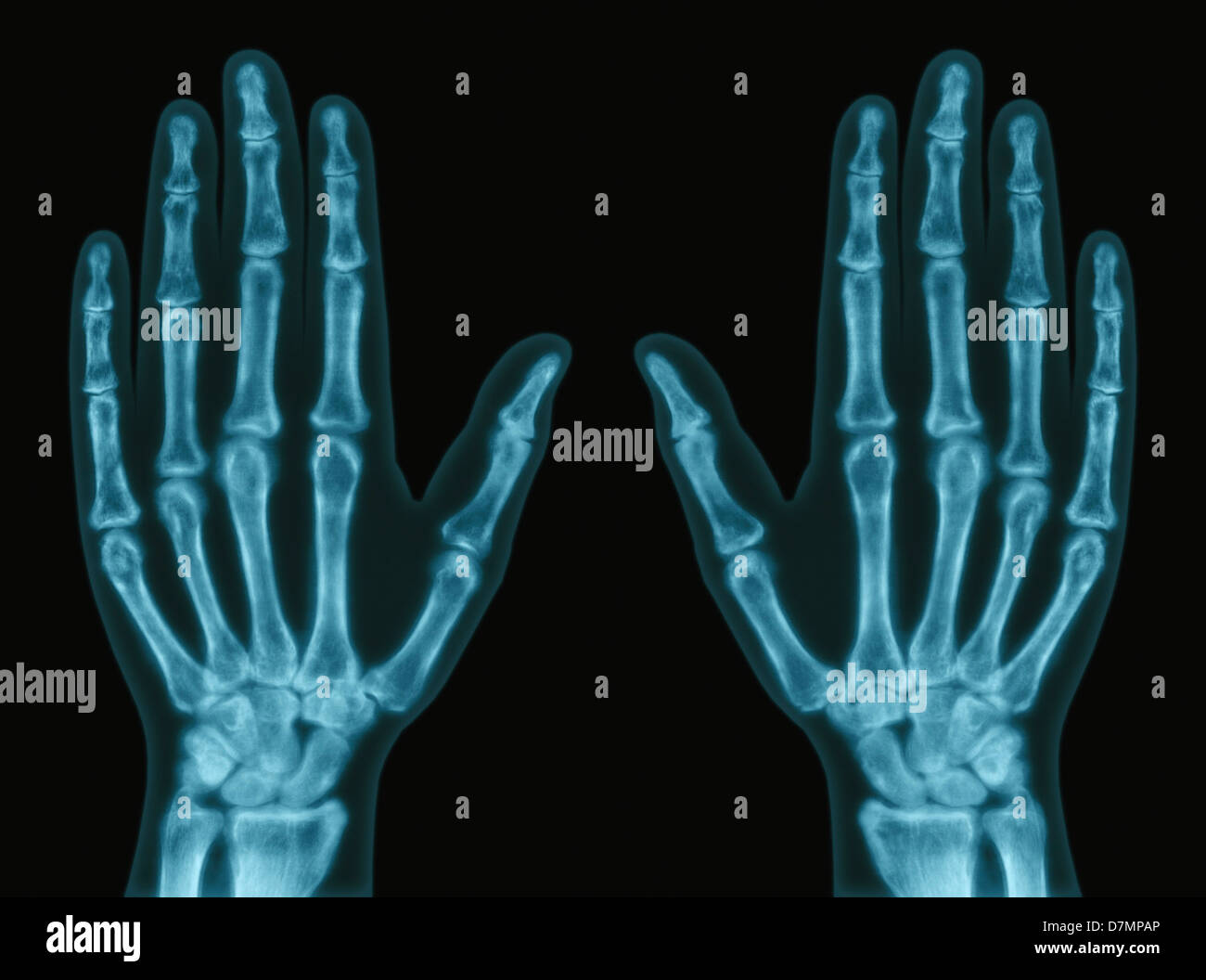 Hands, X-ray - Stock Image