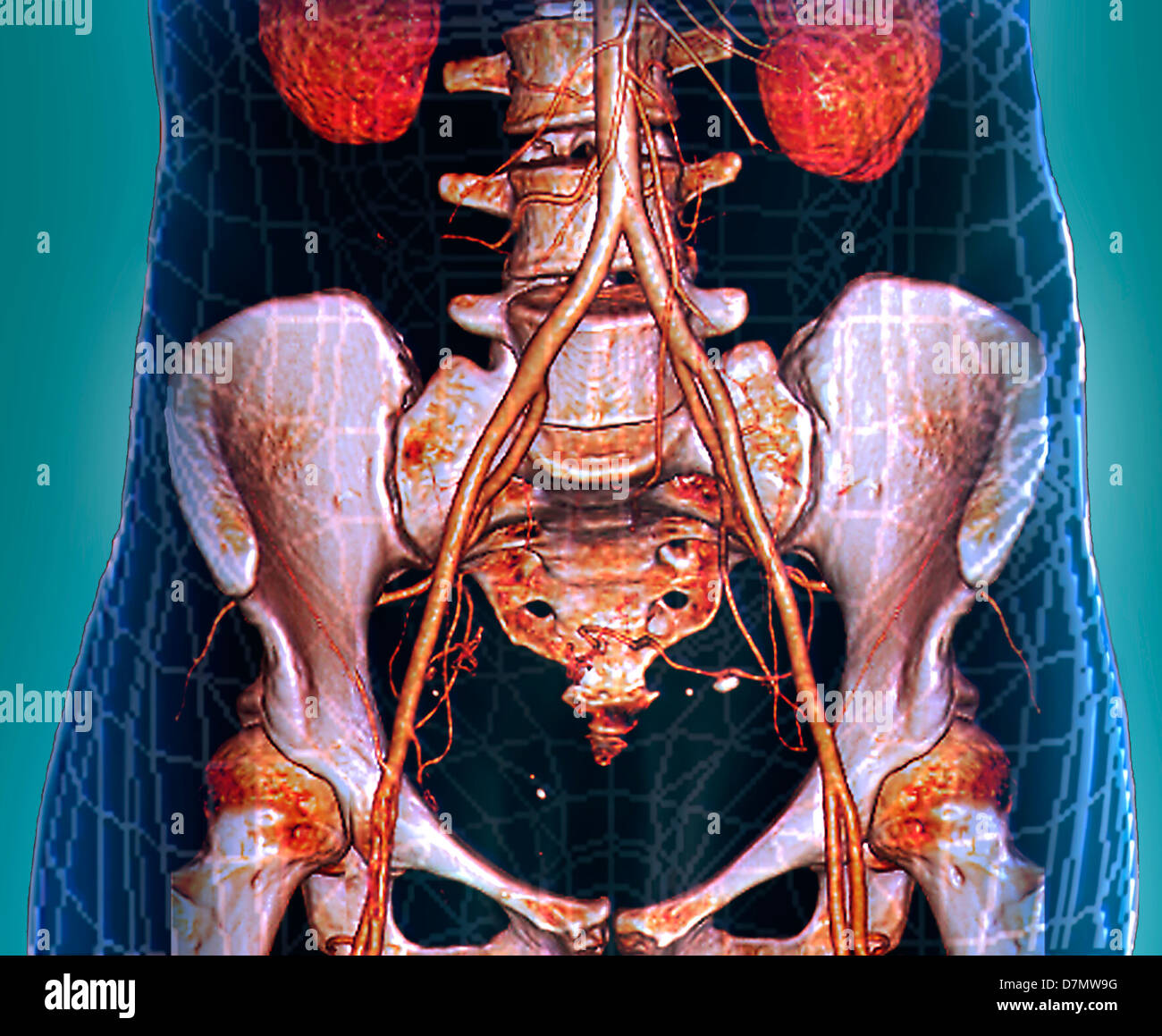 Abdominal aorta, 3D CT scan Stock Photo: 56392604 - Alamy