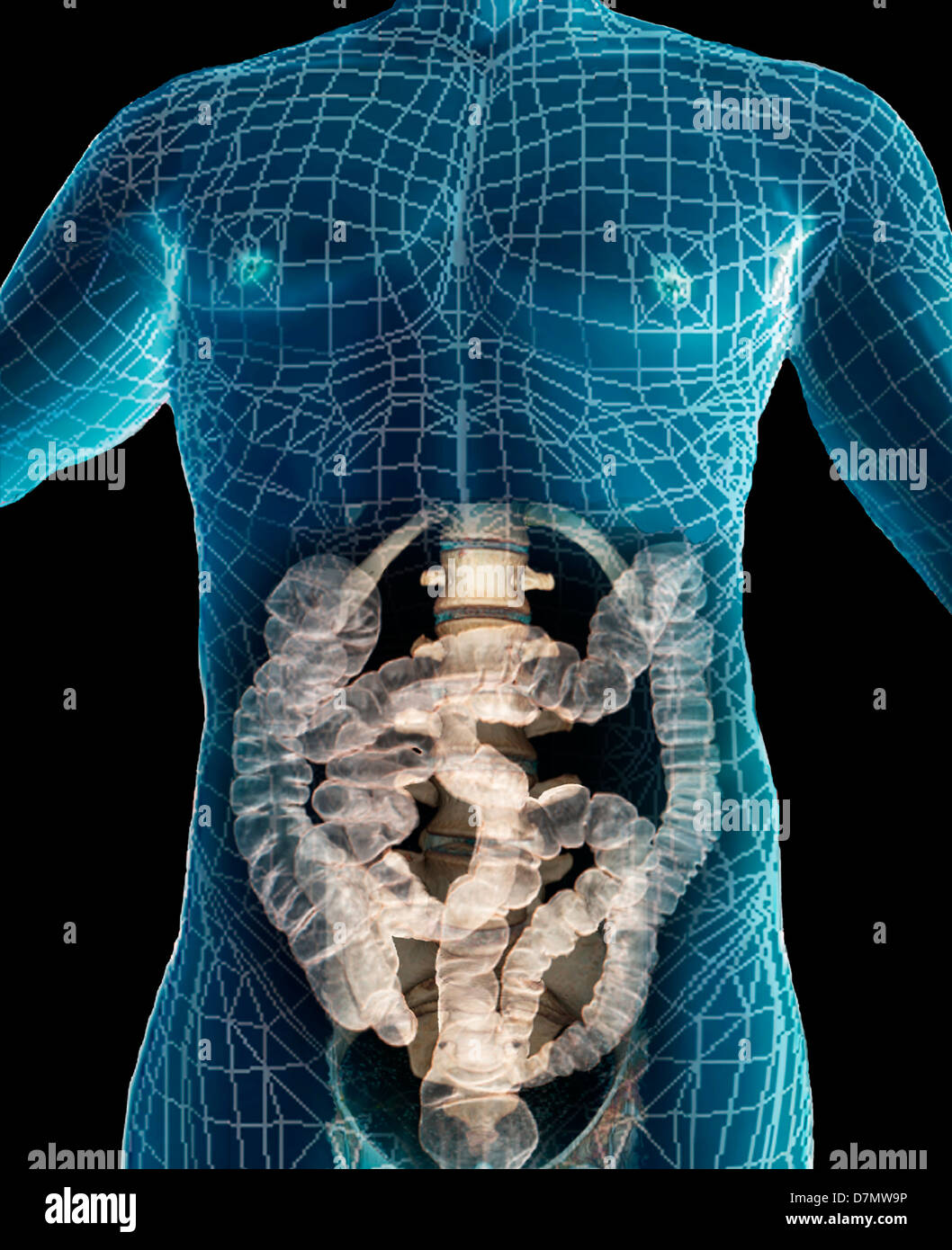 Ct Spine Stock Photos & Ct Spine Stock Images - Alamy