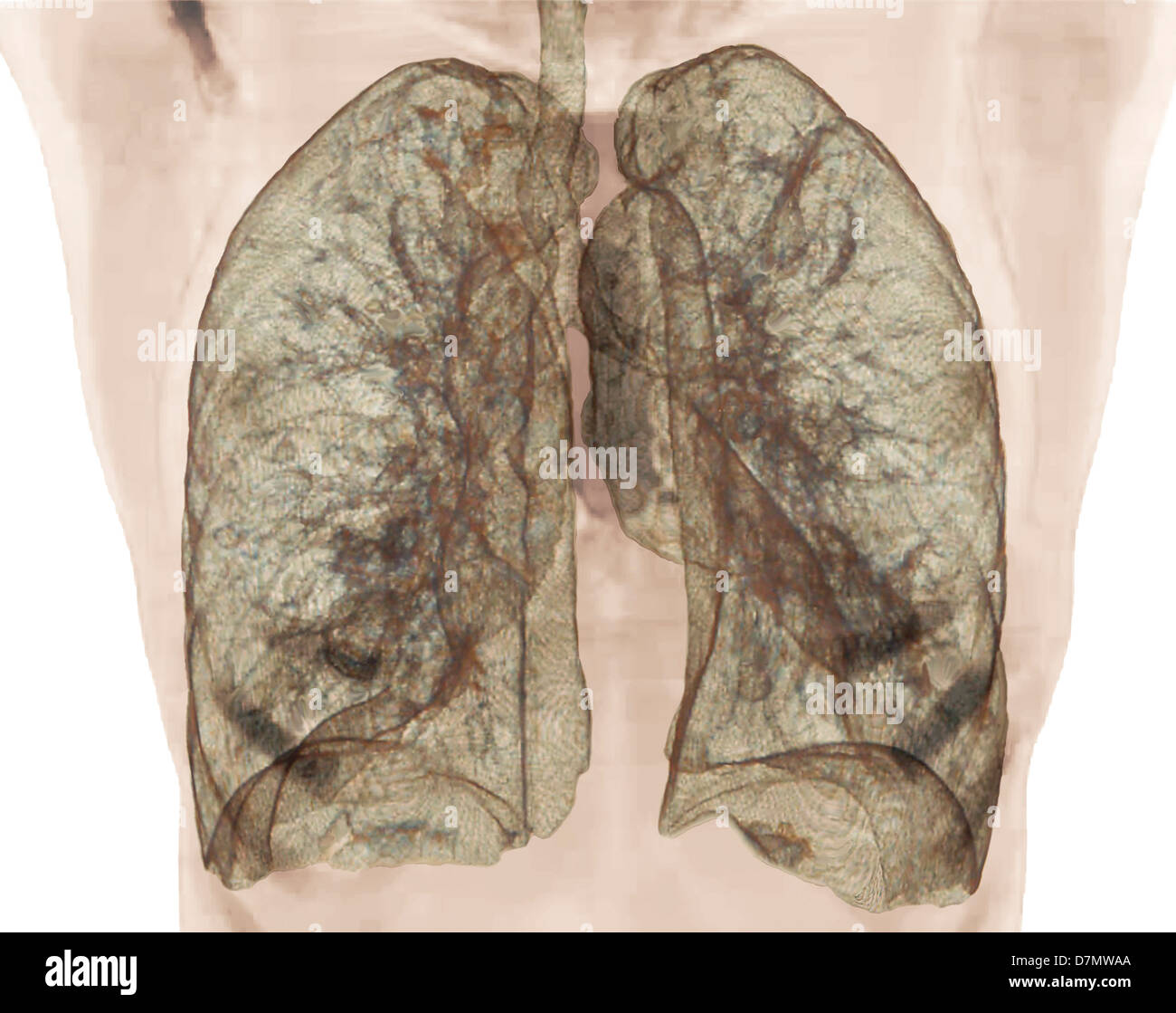 Healthy Lungs 3d Ct Scan Stock Photo 56392626 Alamy