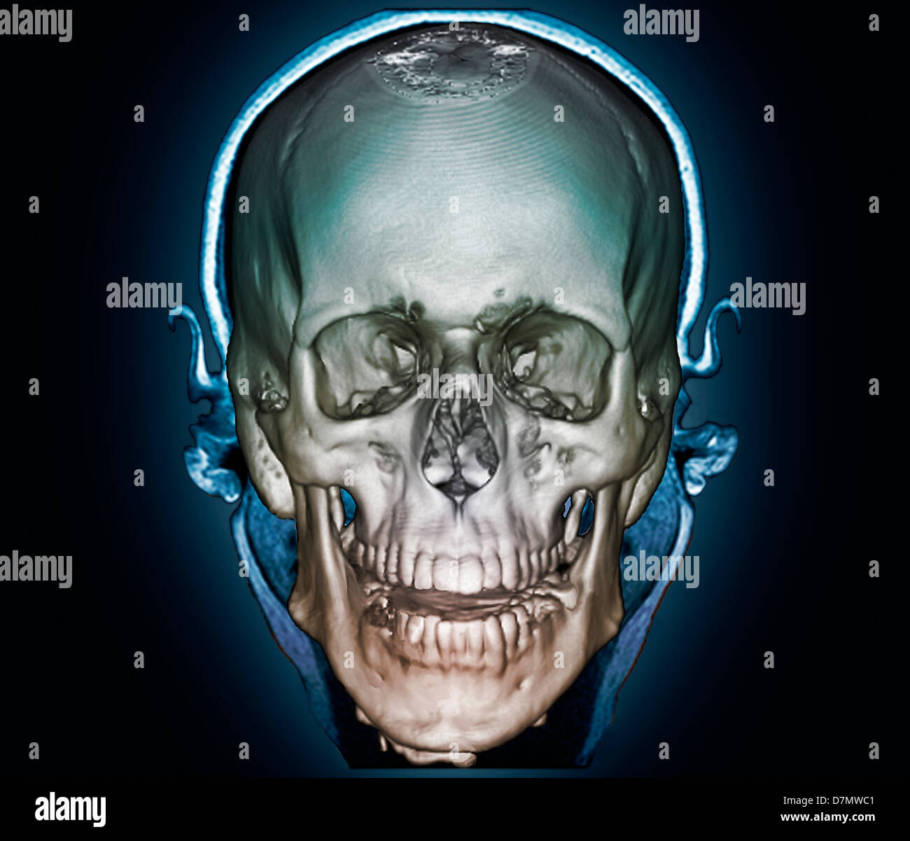 Human skull, 3D CT scan - Stock Image