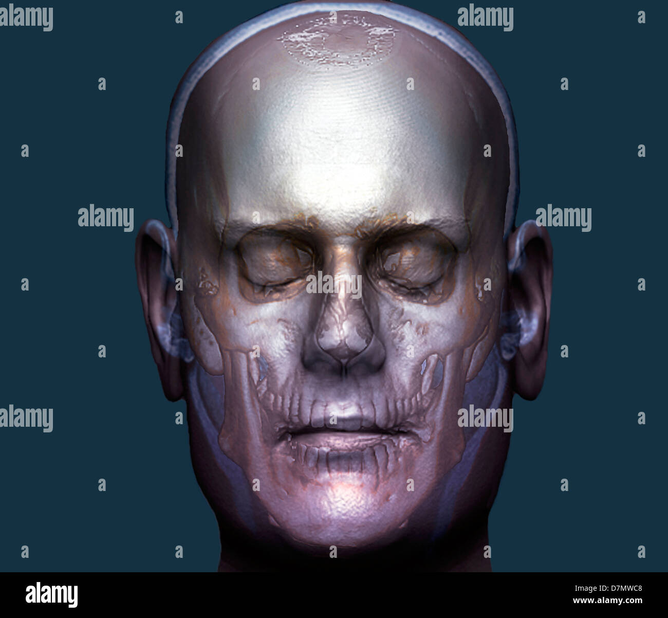 Human head, 3D CT scan - Stock Image