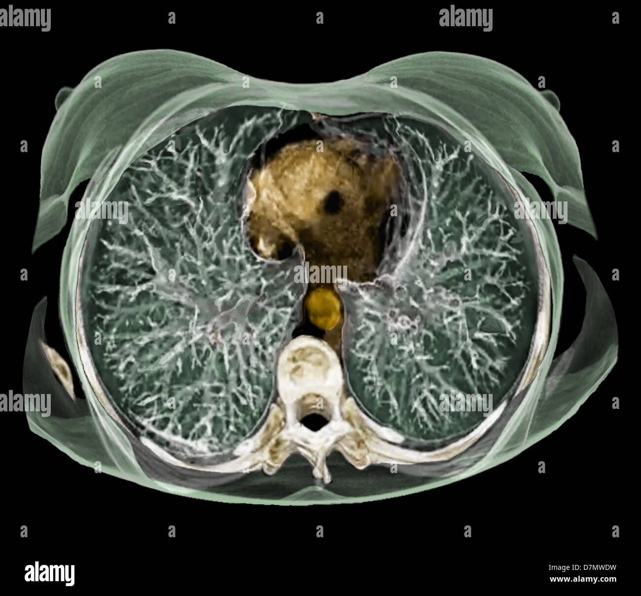Chest Anatomy 3d Ct Scan Stock Photo 56392725 Alamy