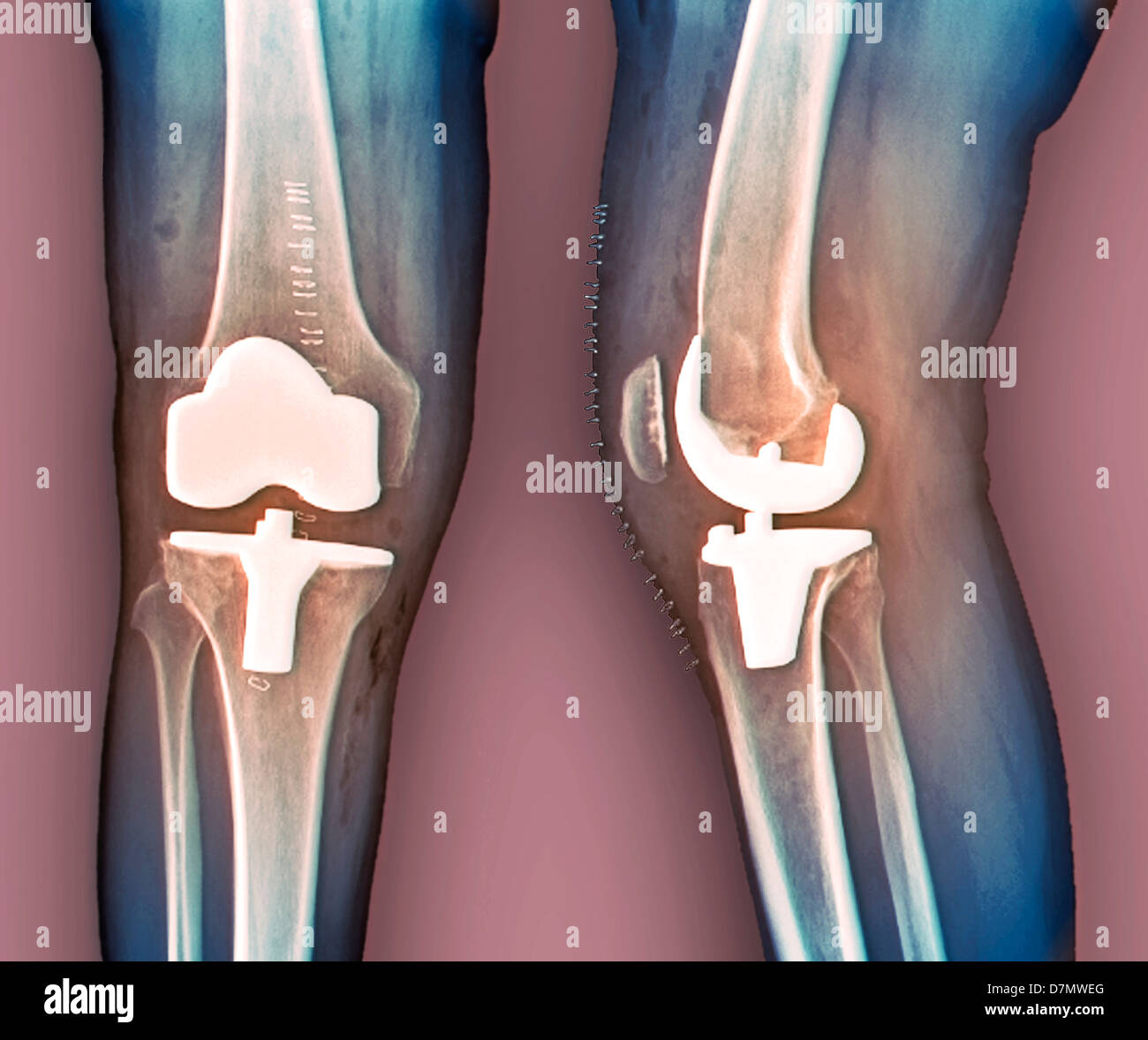 Total knee replacement, X-rays - Stock Image