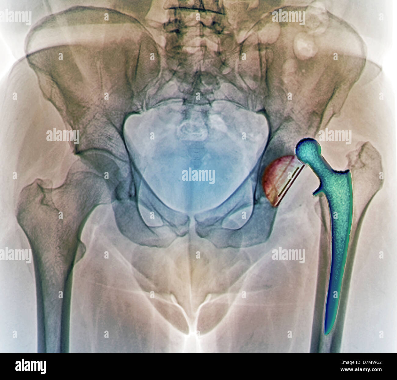 Dislocated hip replacement, X-ray - Stock Image