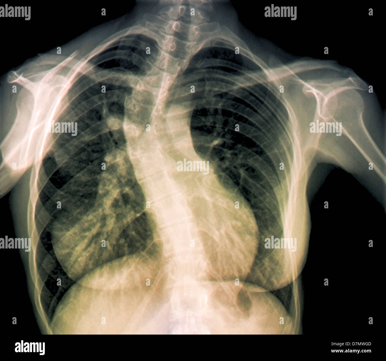 Scoliosis of the spine, X-ray - Stock Image