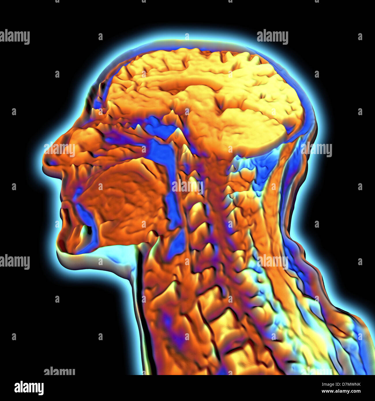 Coloured MRI scan of the human hea - Stock Image