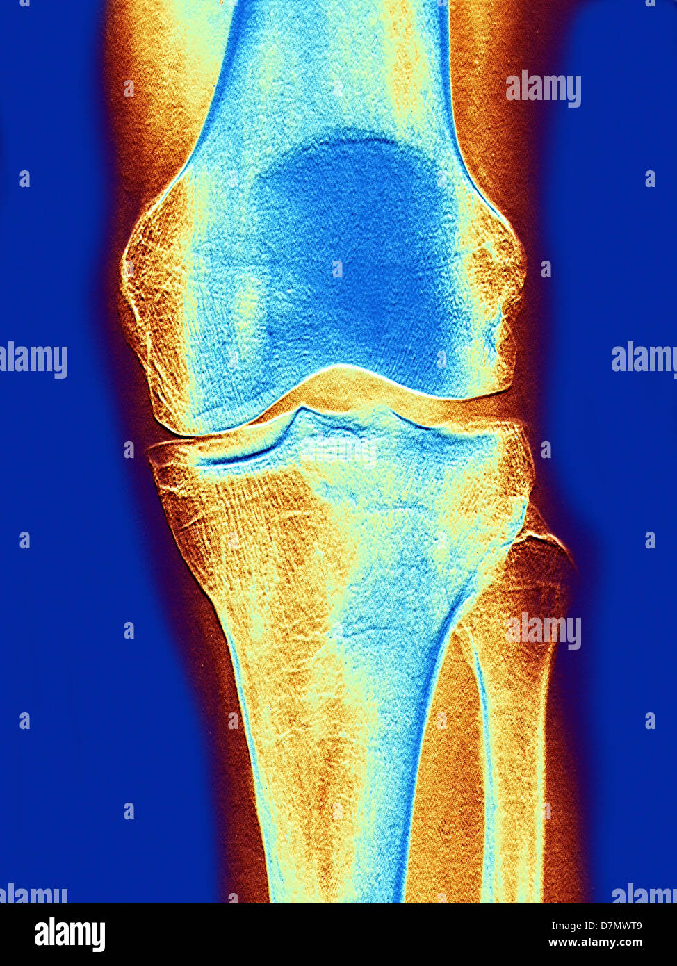 Knee joint, x-ray - Stock Image