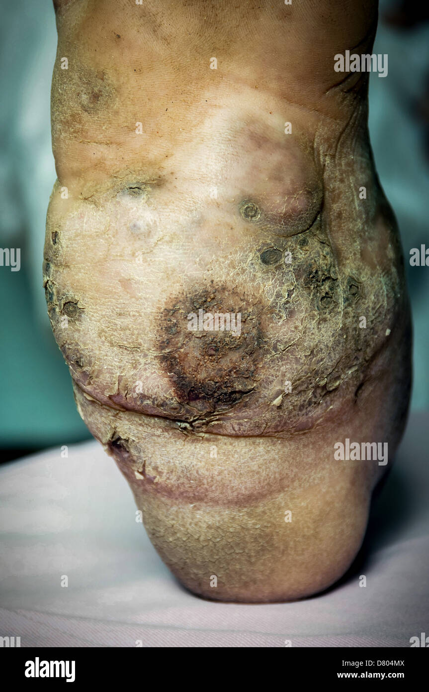 Mycetoma on the sole right foot of a patient. - Stock Image