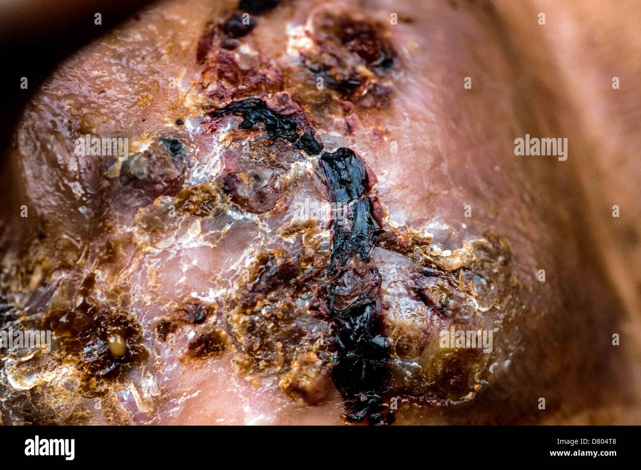 Eumycetoma on the right foot of a 35 year old male. - Stock Image