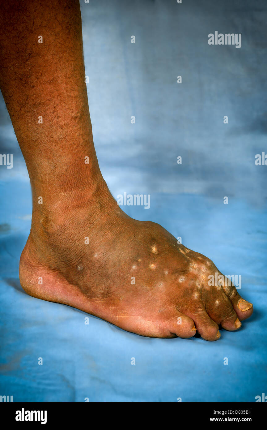 Actinomycetoma of the left foot. - Stock Image