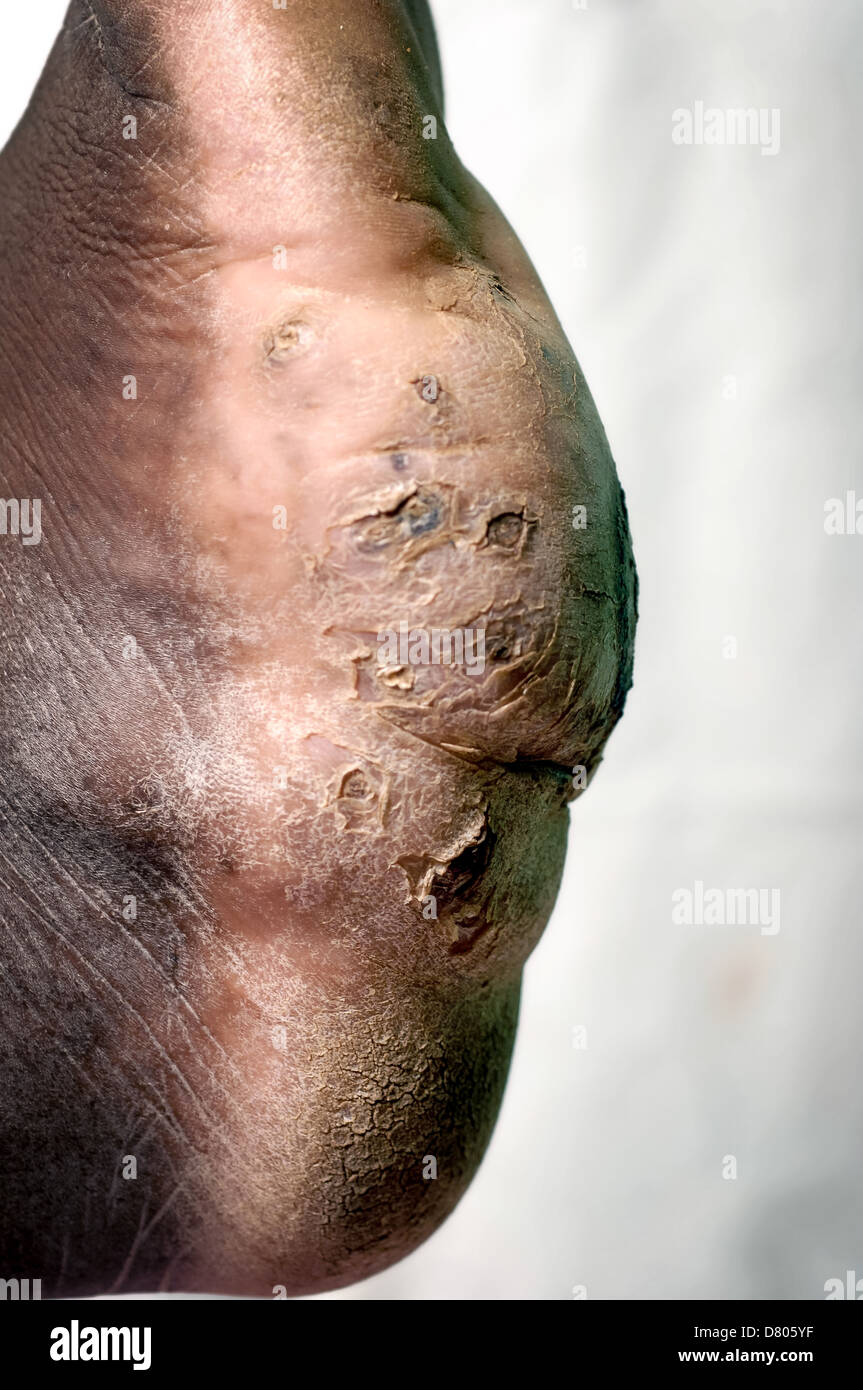 Mycetoma on the left foot of a young male. - Stock Image