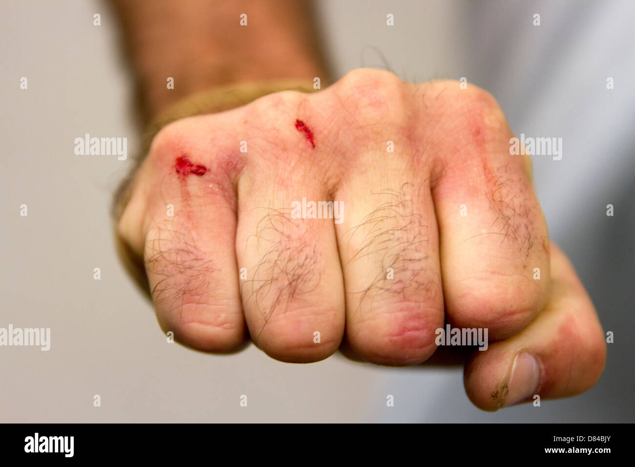 Bloody Knuckles - Stock Image
