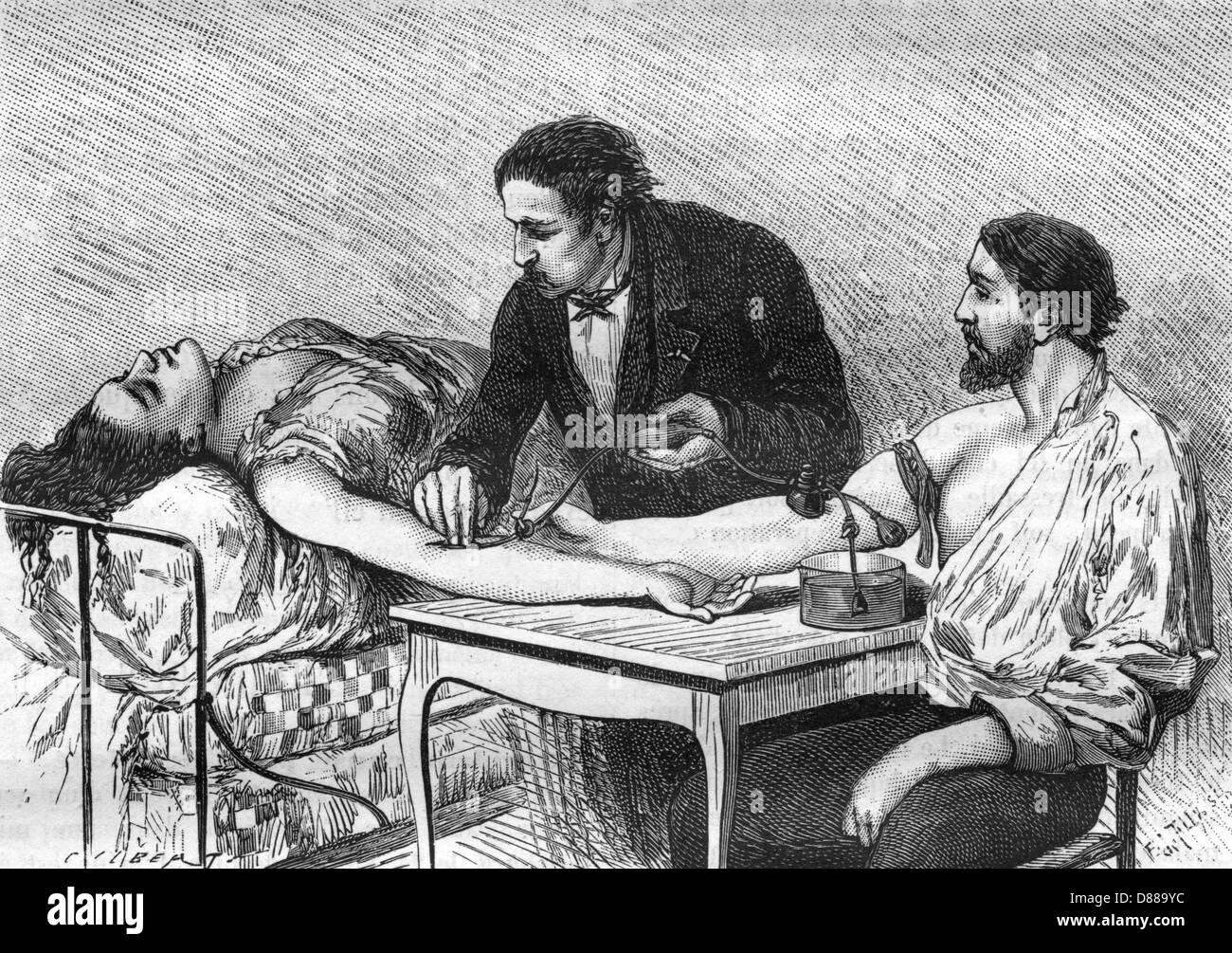 Blood Transfusion 1882 - Stock Image